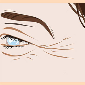 روغن خراطین و روغن زالو برای خطوط پنجه کلاغی